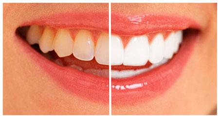 teethstainwhite